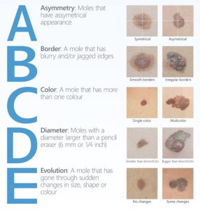 ABCDE Skin Cancer Check