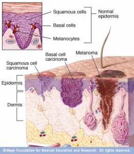 Skin Cancer Skin anatomy
